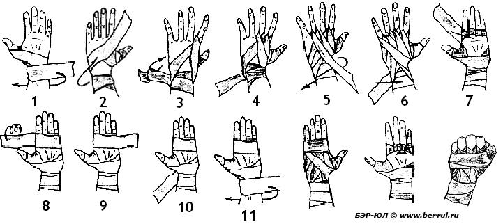 Как бинтовать руку